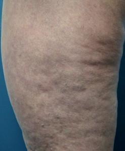 Cellulite 1_thigh_Adrian Lim
