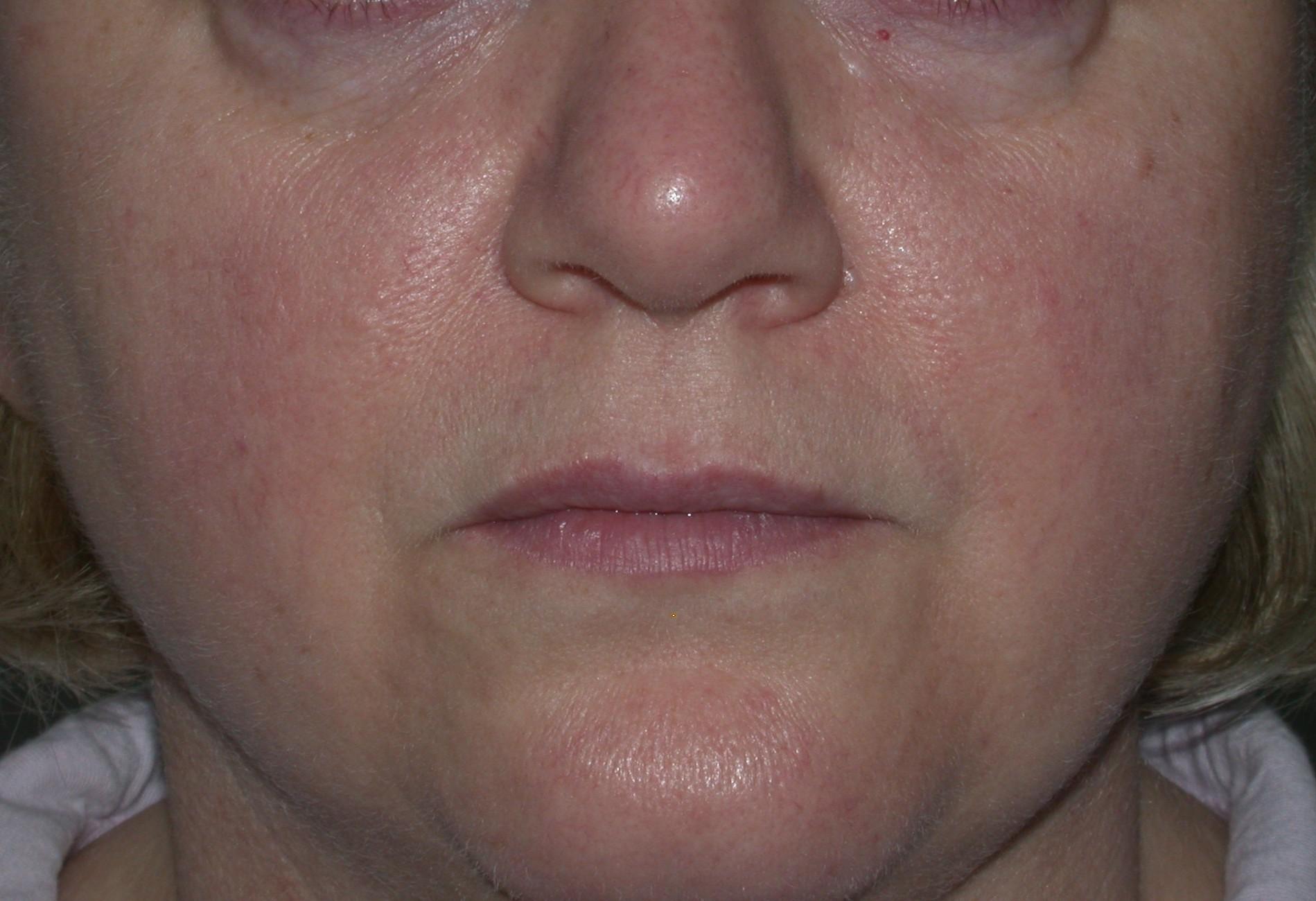 Vascular Lasers