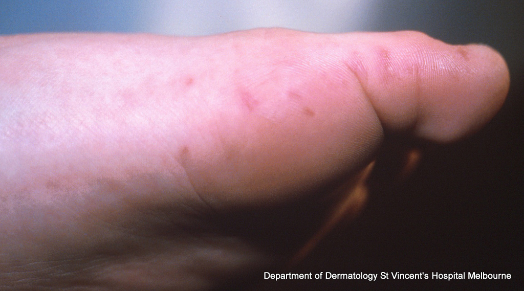 scabies_1