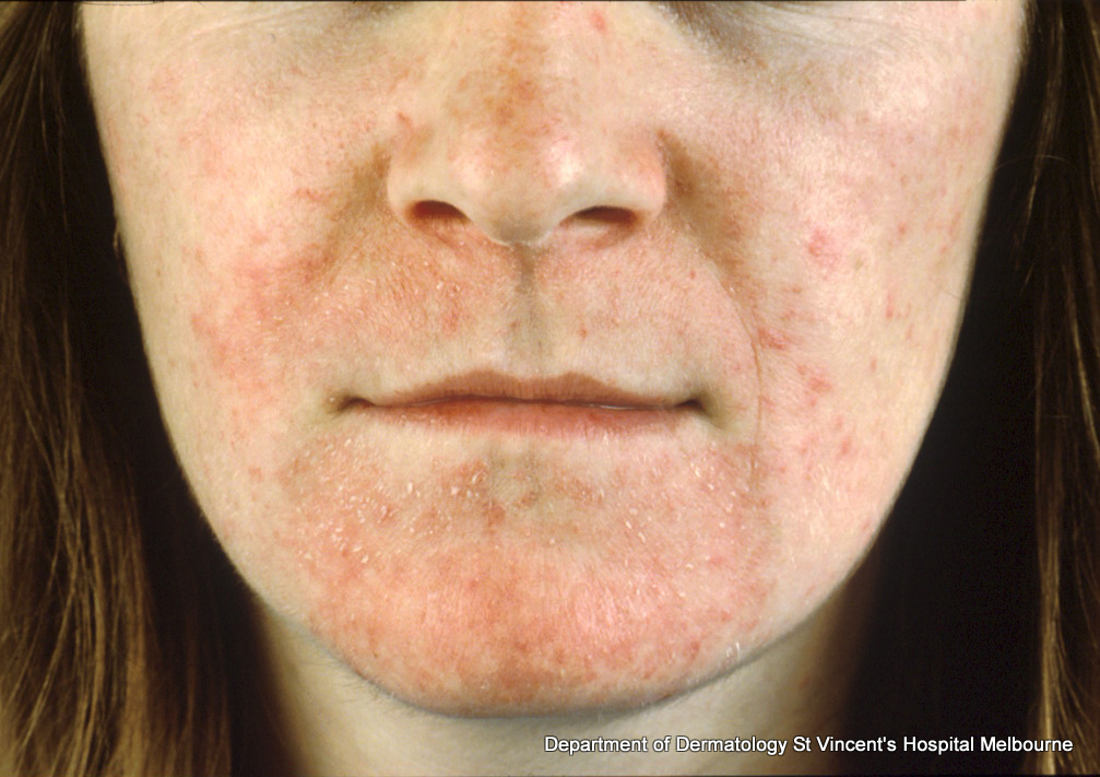 topical steroid induced acne treatment