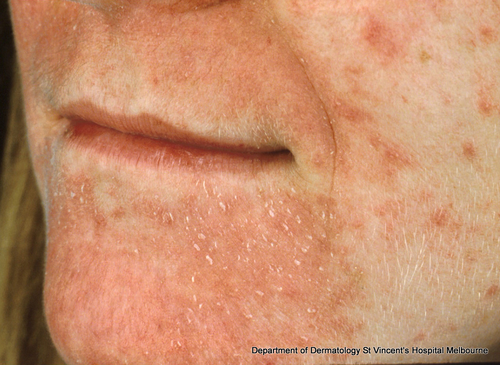 Perioral Dermatitis: Solutions for Red Bumps Around the ...