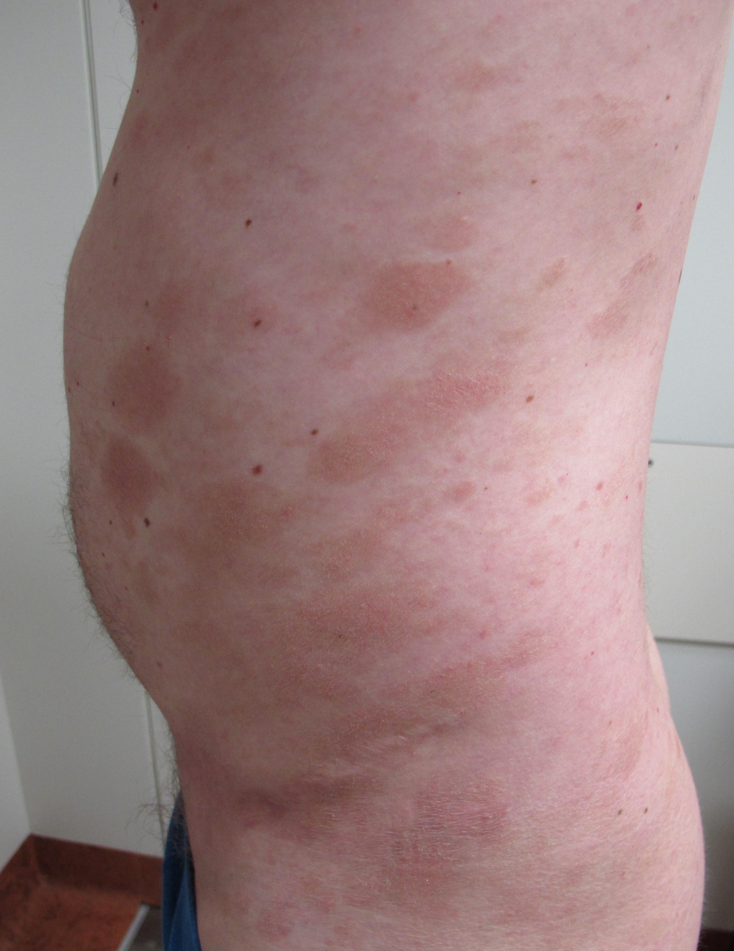 EFPIA - Mycosis Fungoides