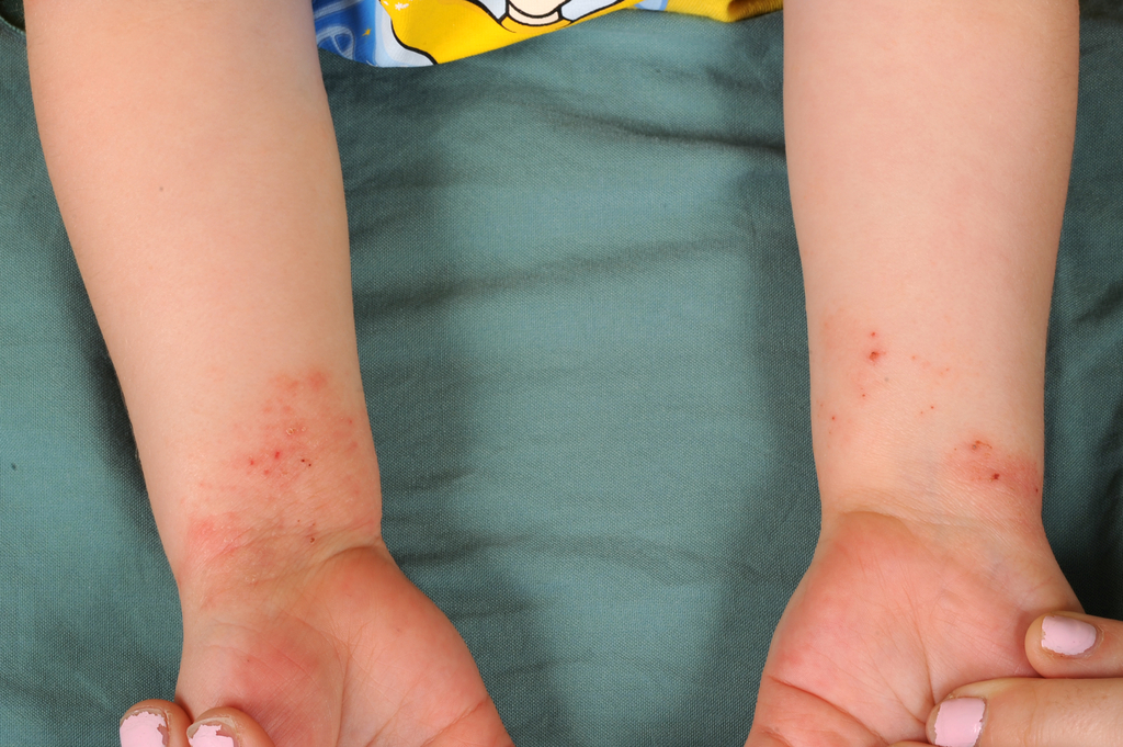 DermIS - Acrodermatitis Enteropathica (information on the ...