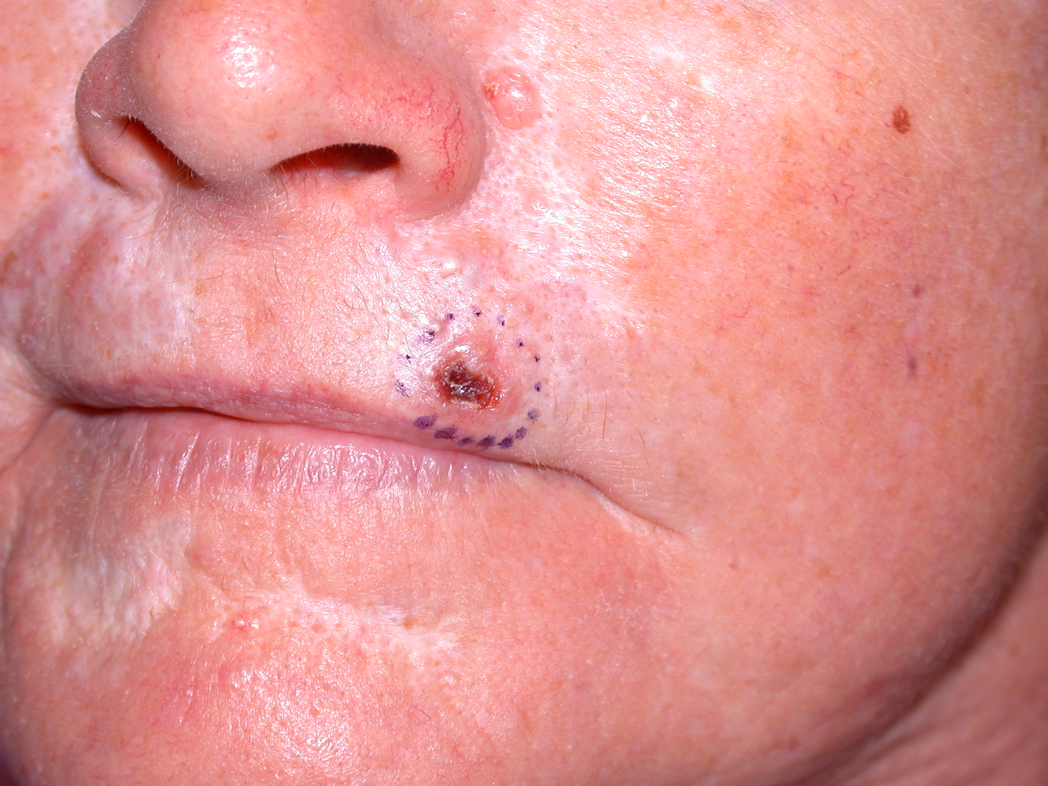BCC on the lip – image reproduced with permission of Dr Chris Kearney