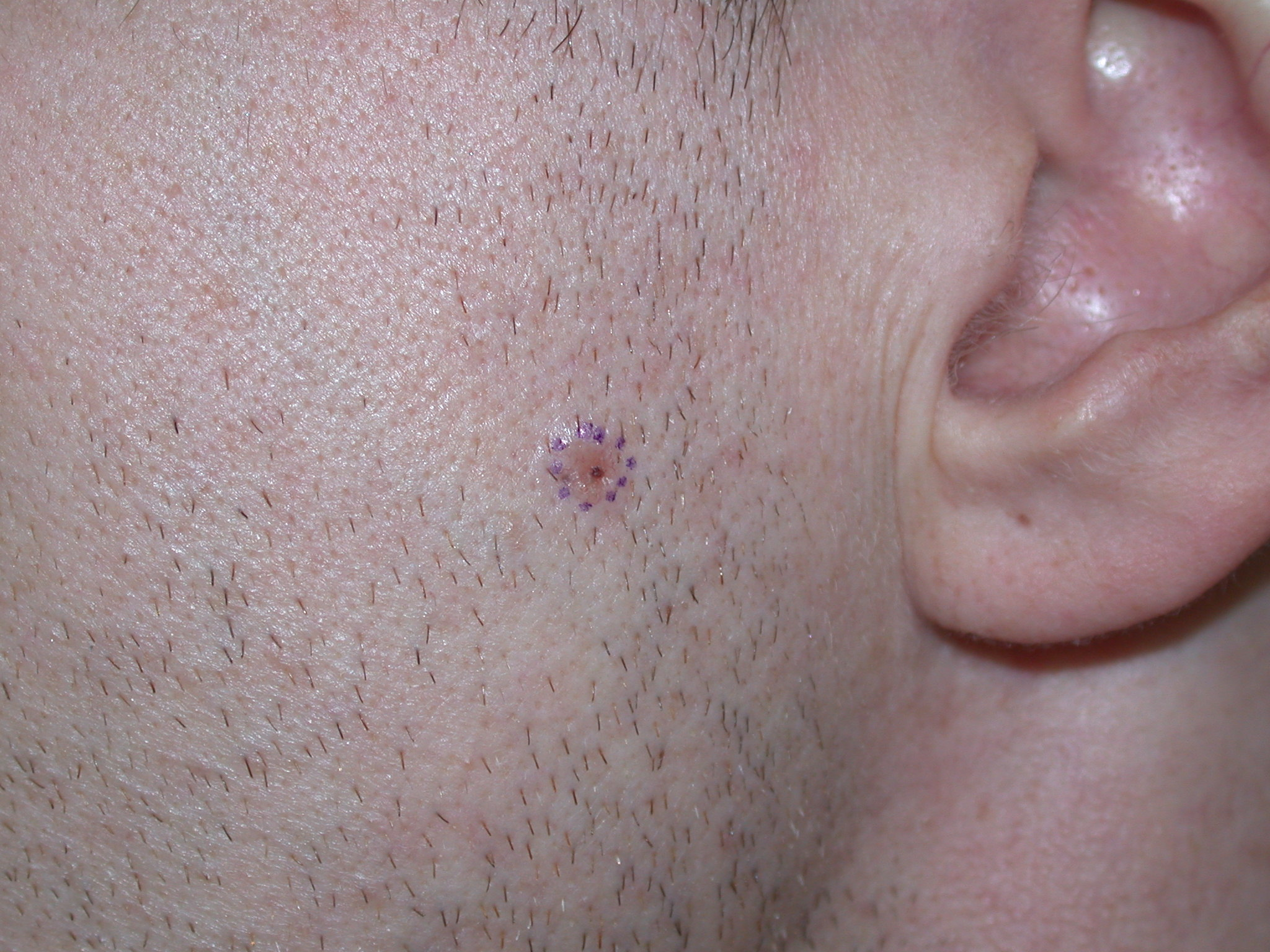 BCC on the cheek – image reproduced with permission of Dr Chris Kearney