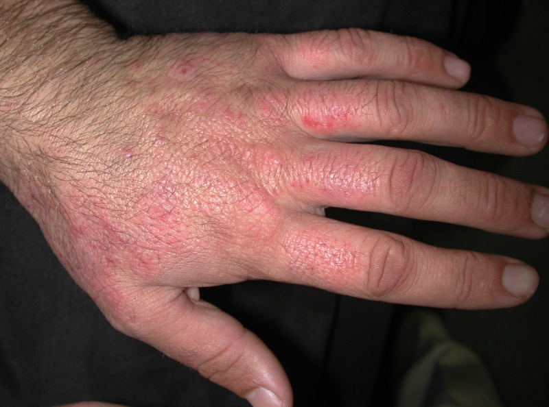 Contact dermatitis: MedlinePlus Medical Encyclopedia