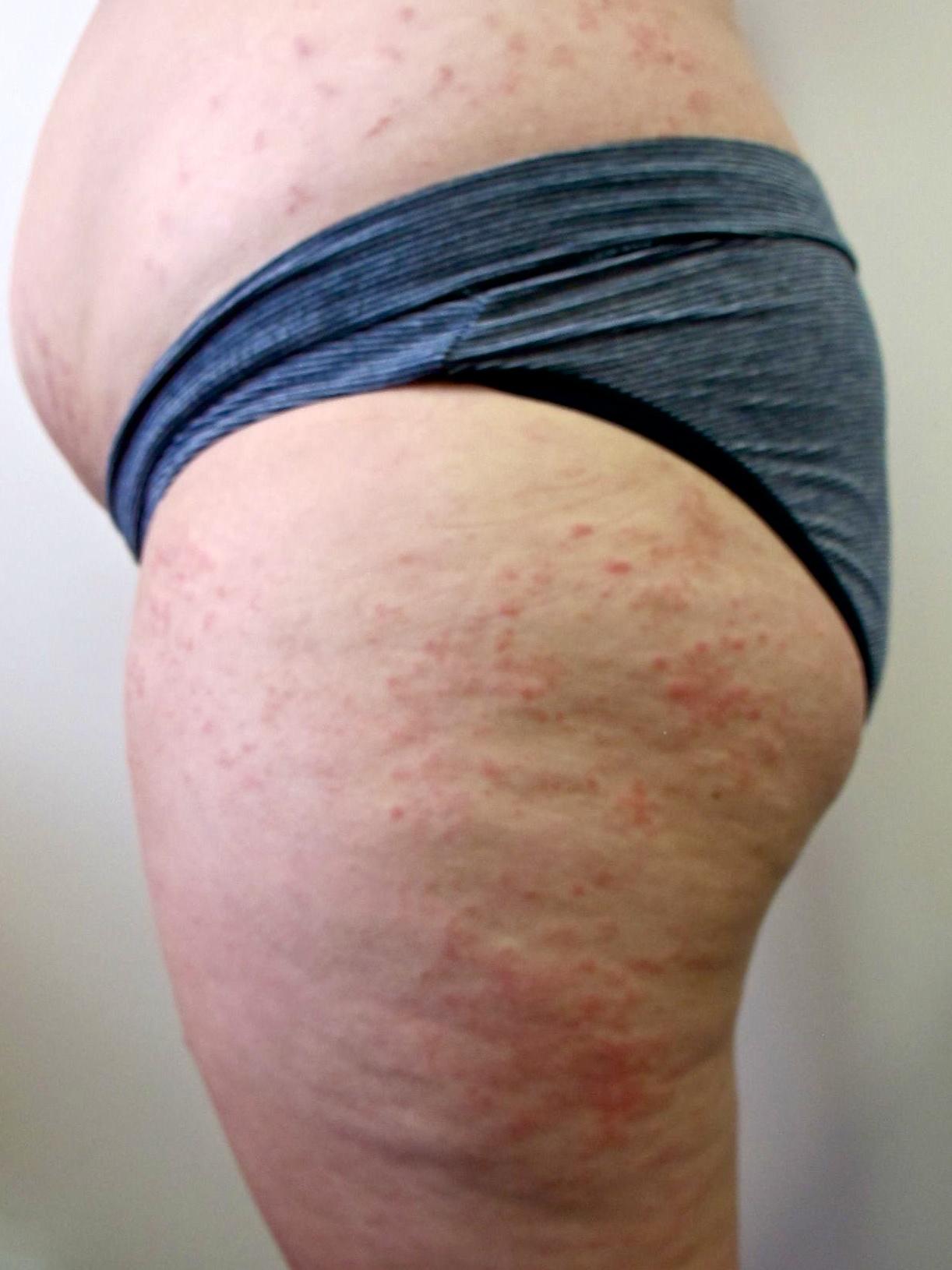 steroid skin rash