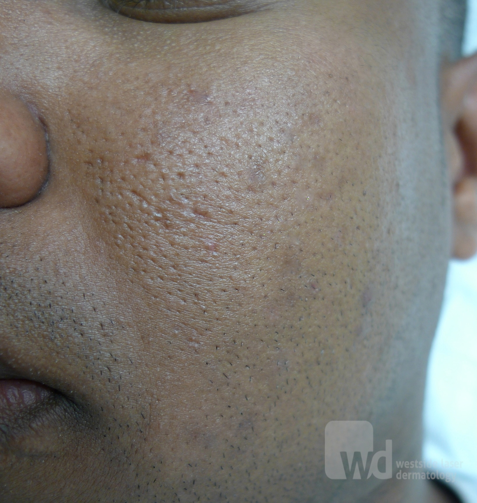 Acd A Z Of Skin Acne Scars Acne Scarring