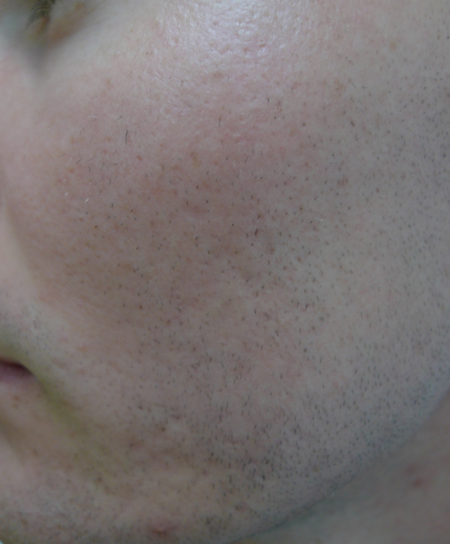 acne scarring2-DavinLim