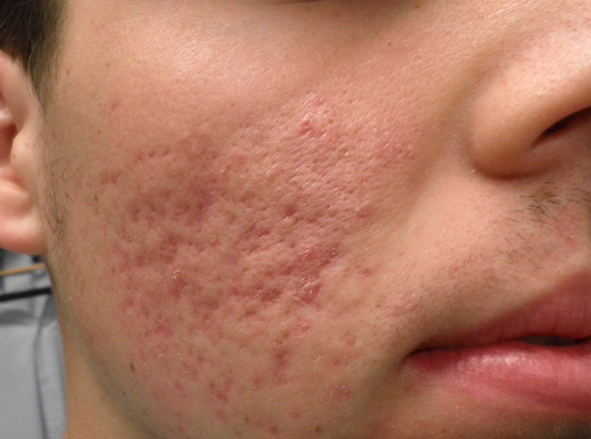 does ice help acne