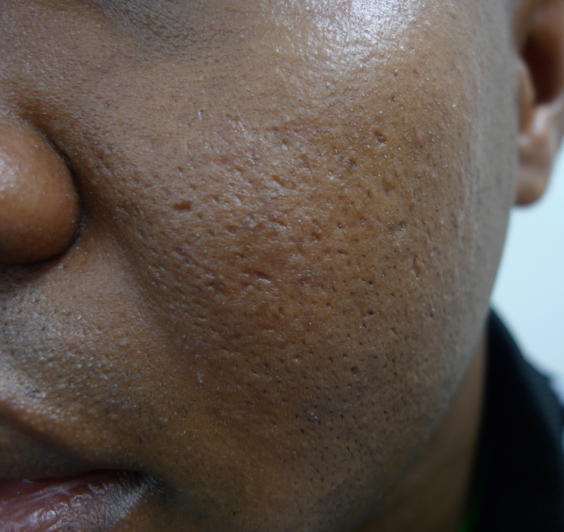 ACD A-Z of Skin - Acne scars (acne scarring)