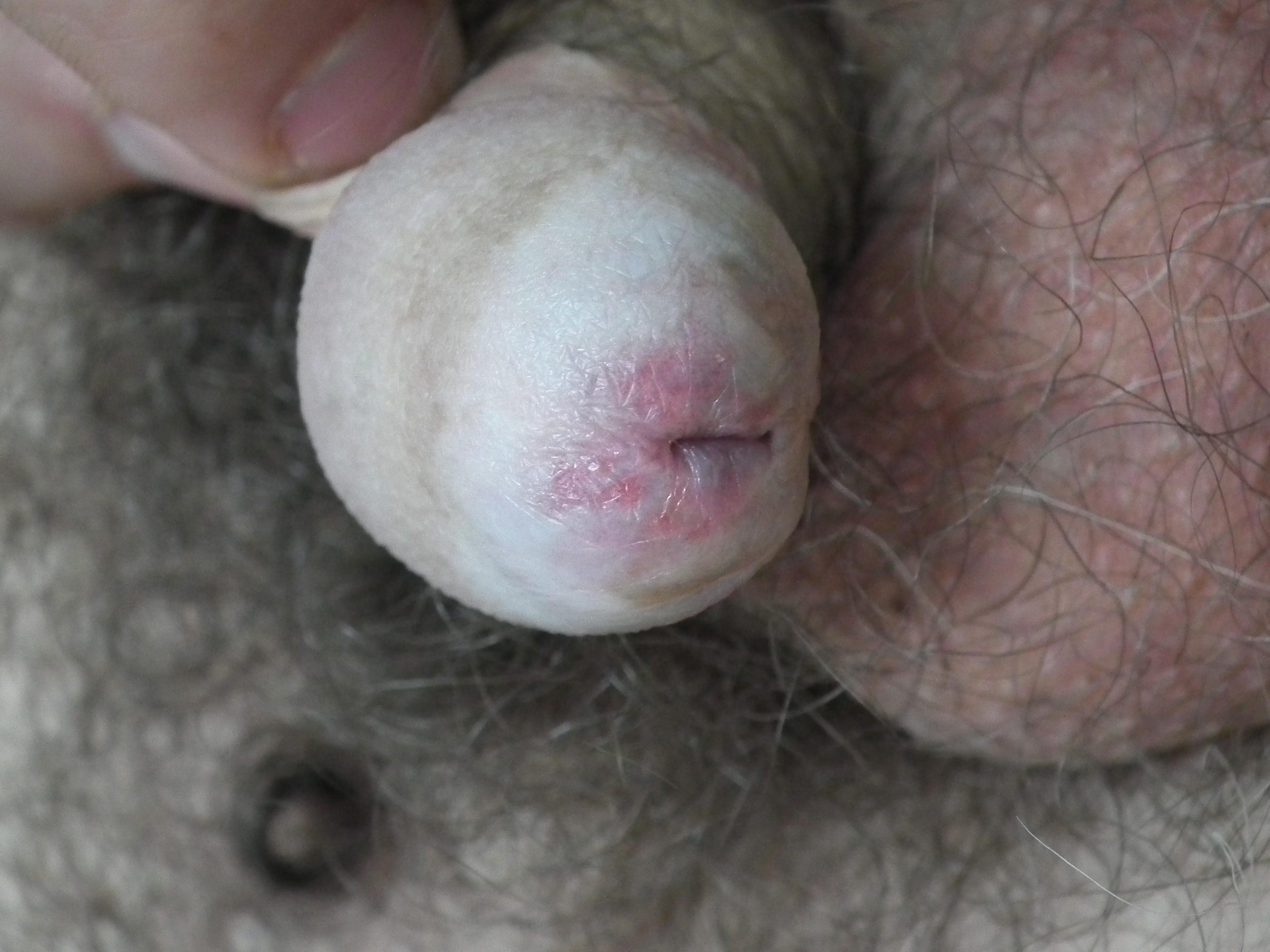 Balanitis due to lichen sclerosus – Image reproduced with permission of Associate Professor Anthony Hall