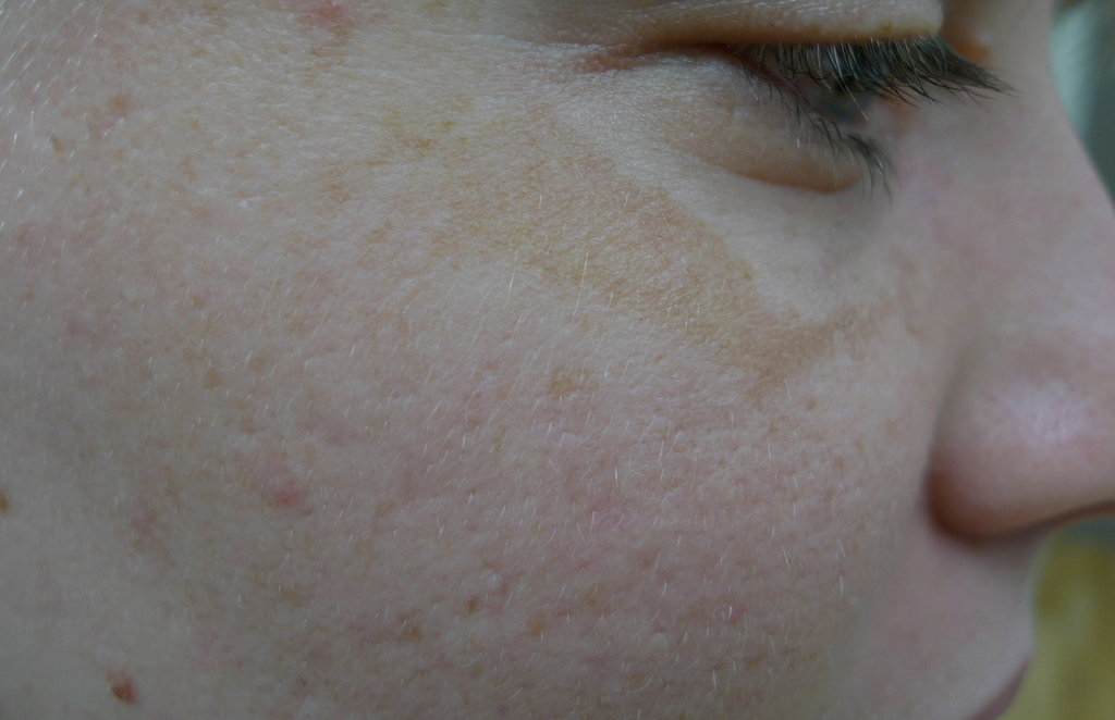 A typical presentation of melasma under the eyes - image reproduced with permission of Dr Davin Lim