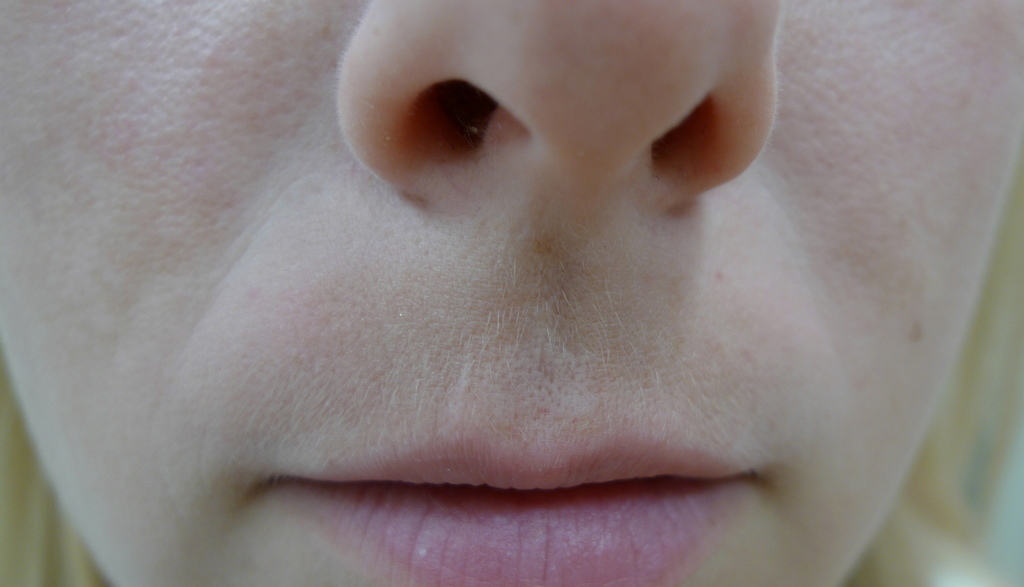 Melasma commonly affects the upper lip - image reproduced with permission of Dr Davin Lim