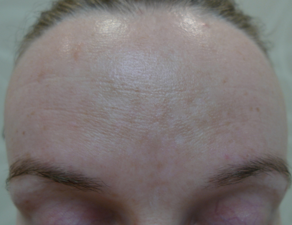 Melasma was treated with a series of chemical peels and skin lightening creams. Images reproduced with permission of Dr Davin Lim