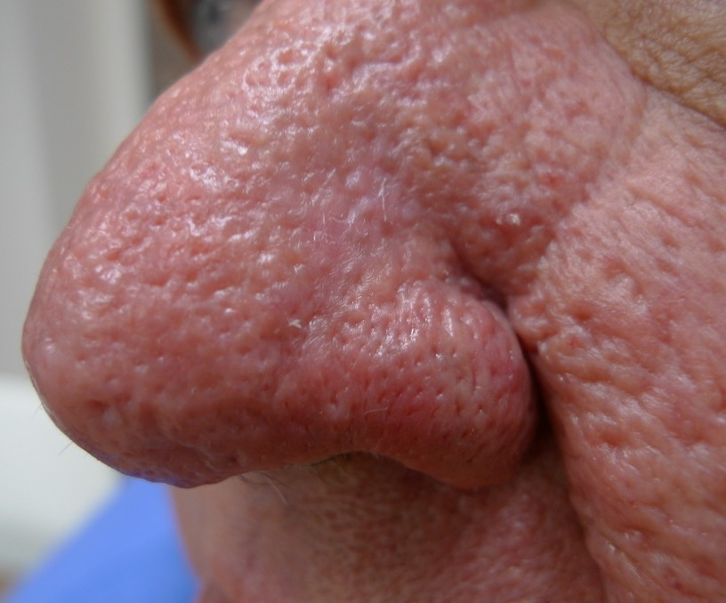 Acd A Z Of Skin Rhinophyma