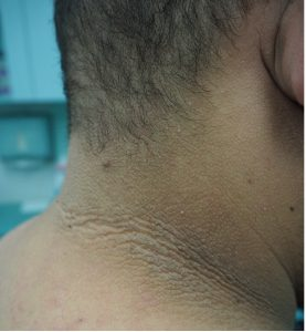 Acanthosis Nigricans on the Neck