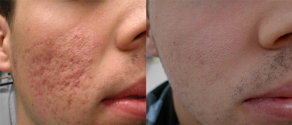 Acne scars before and after fractional laser treatment. Images reproduced with permission of Dr Davin Lim