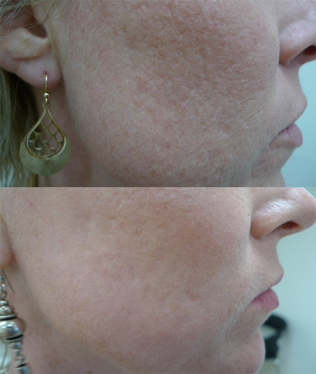 Acne scars before and after three treatments with CO2 fractional ablative laser. Images reproduced with permission of Dr Davin Lim