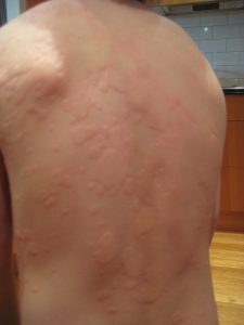 Urticaria on a back