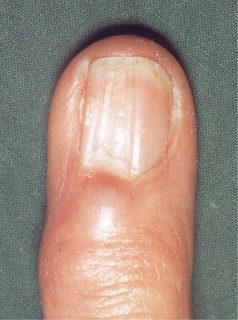 nail indentations on thumbs
