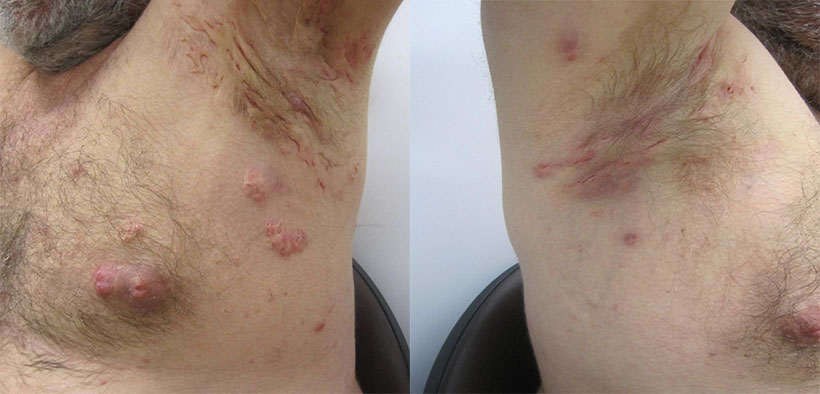 Hidradenitis Groin Pictures – 21 Photos & Images ...