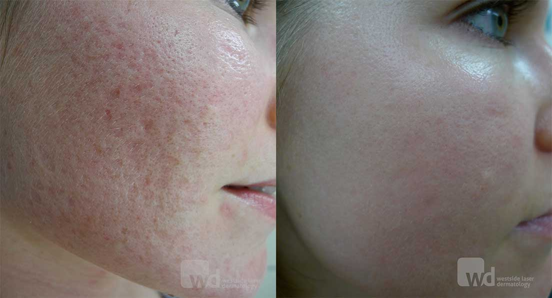 Extensive acne scarring fully ablative laser resurfacing