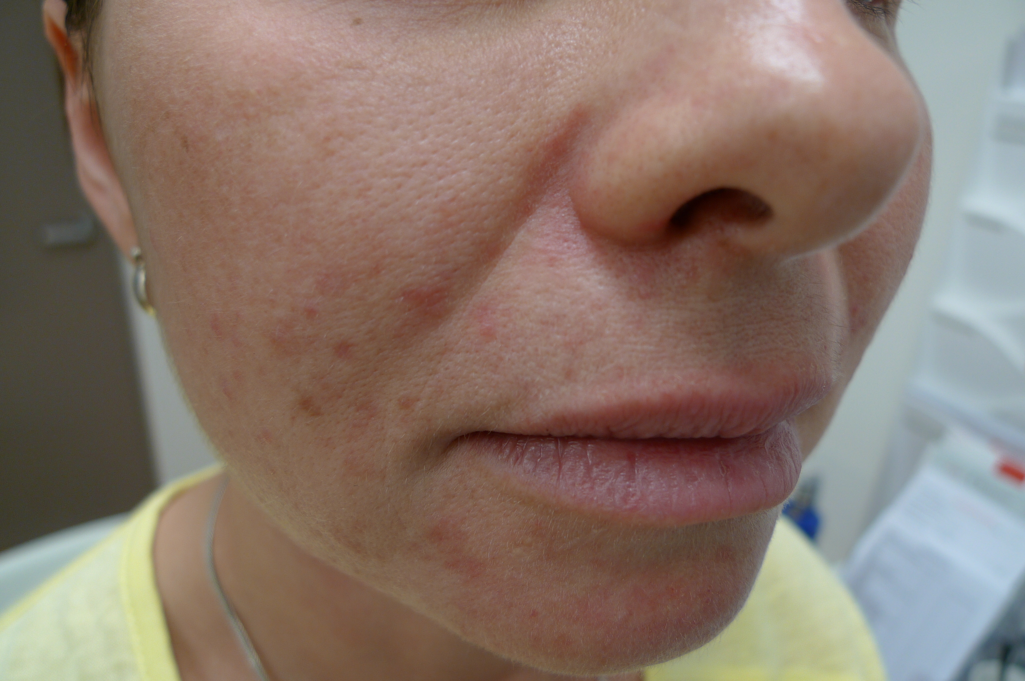 Perioral dermatitis Image reproduced with permission of Dr Davin Lim