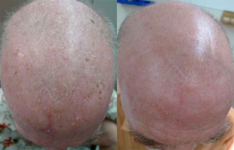 Solar keratoses on the scalp treated with photodynamic therapy – images reproduced with permission of Dr Davin Lim