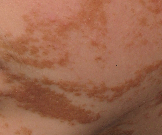 Epidermal naevi