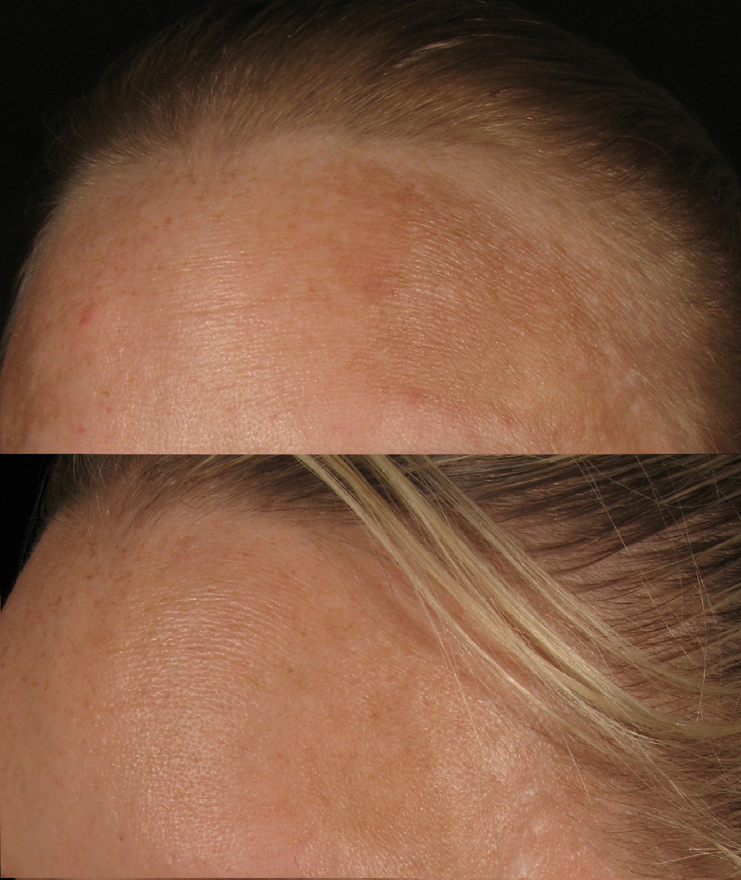 Melasma treated with hydroquinone