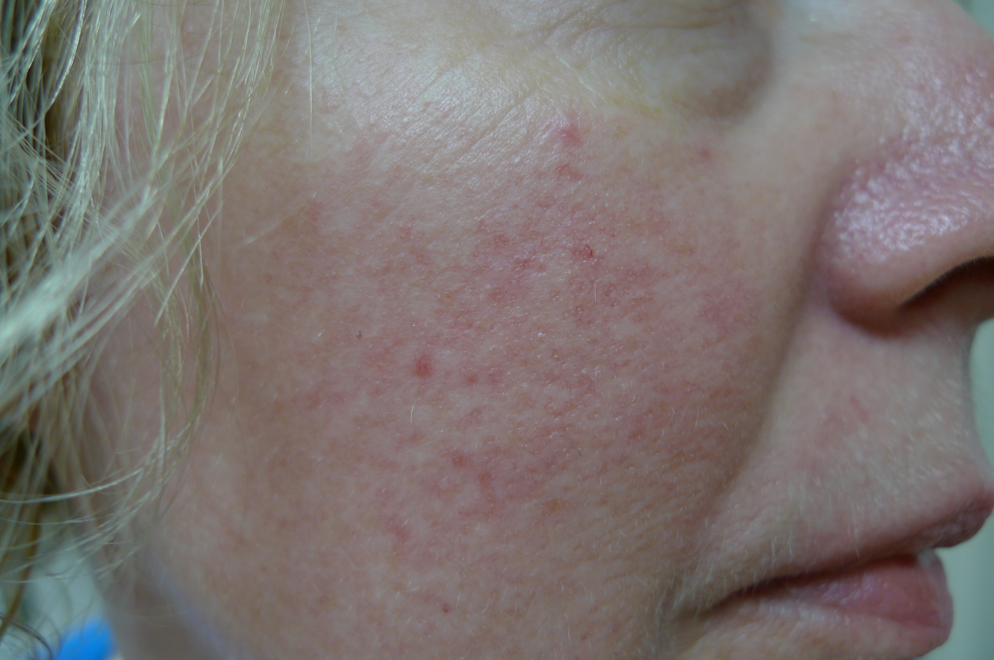 rosacea Image reproduced with permission of Dr Davin Lim