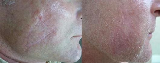 Skin cancer scars