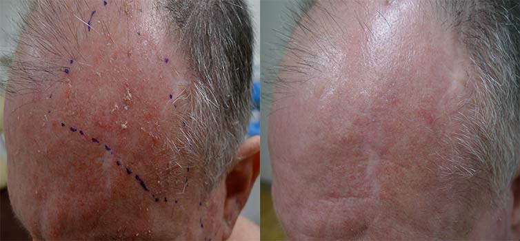 Actinic keratoses on the temples and forehead treated with laser therapy – images reproduced with permission of Dr Davin Lin