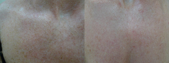 Images of chest and décolletage area, before and after two fractional non-ablative laser treatments. Images reproduced with permission of Dr Davin Lim