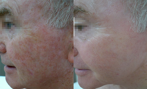 Sun damage, before and eight days after fractional non-ablative laser resurfacing treatment. Images reproduced with permission of Dr Davin Lim