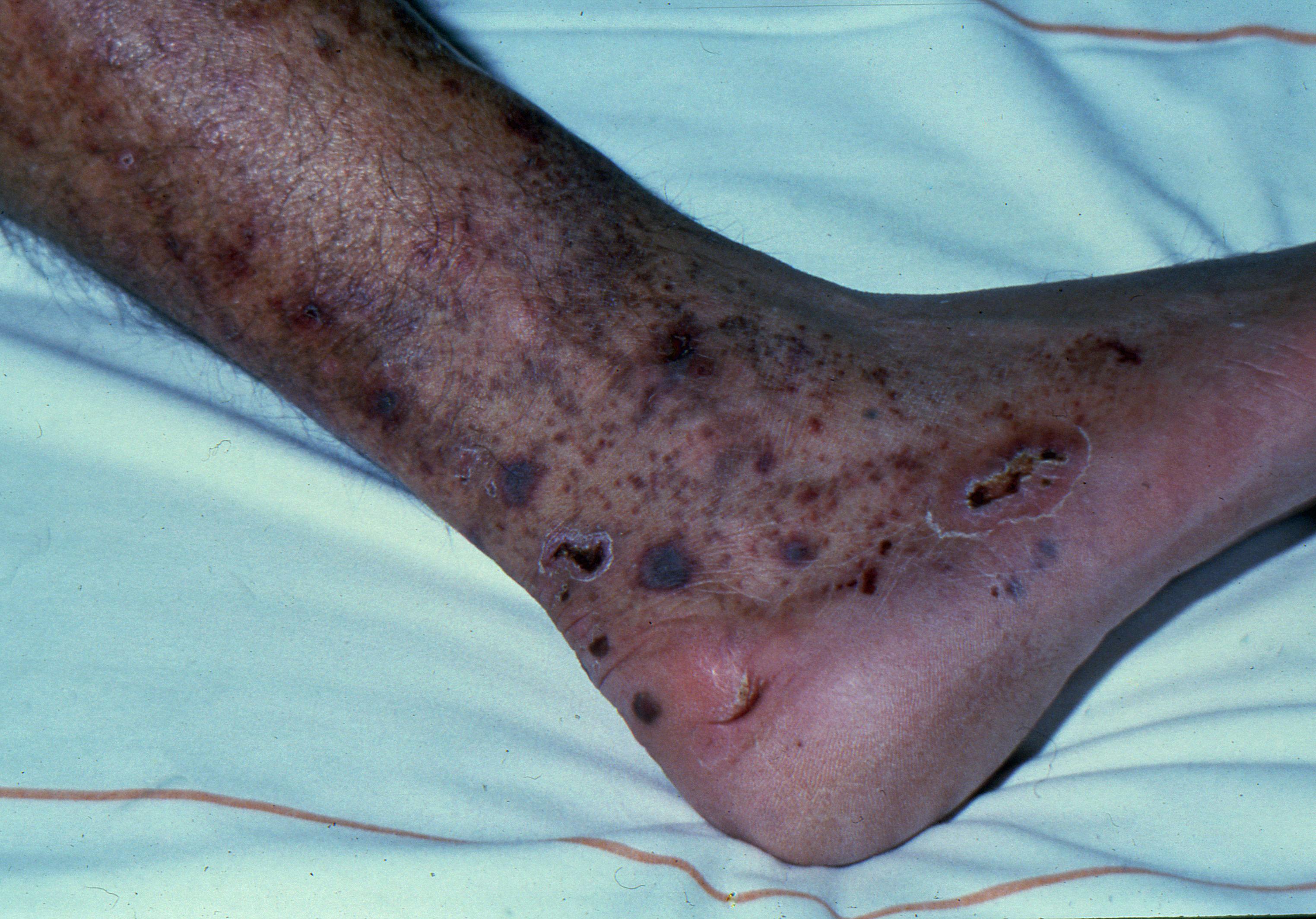 leg ulcers Cryoglobulinaemic vasclulitis