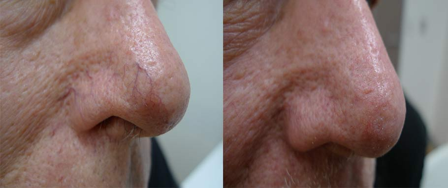 Nasal telangiectases treated with pulse dye laser – images reproduced with permission of Dr Davin Lim